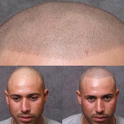 sac pigmentasyon oncesi sonrasi